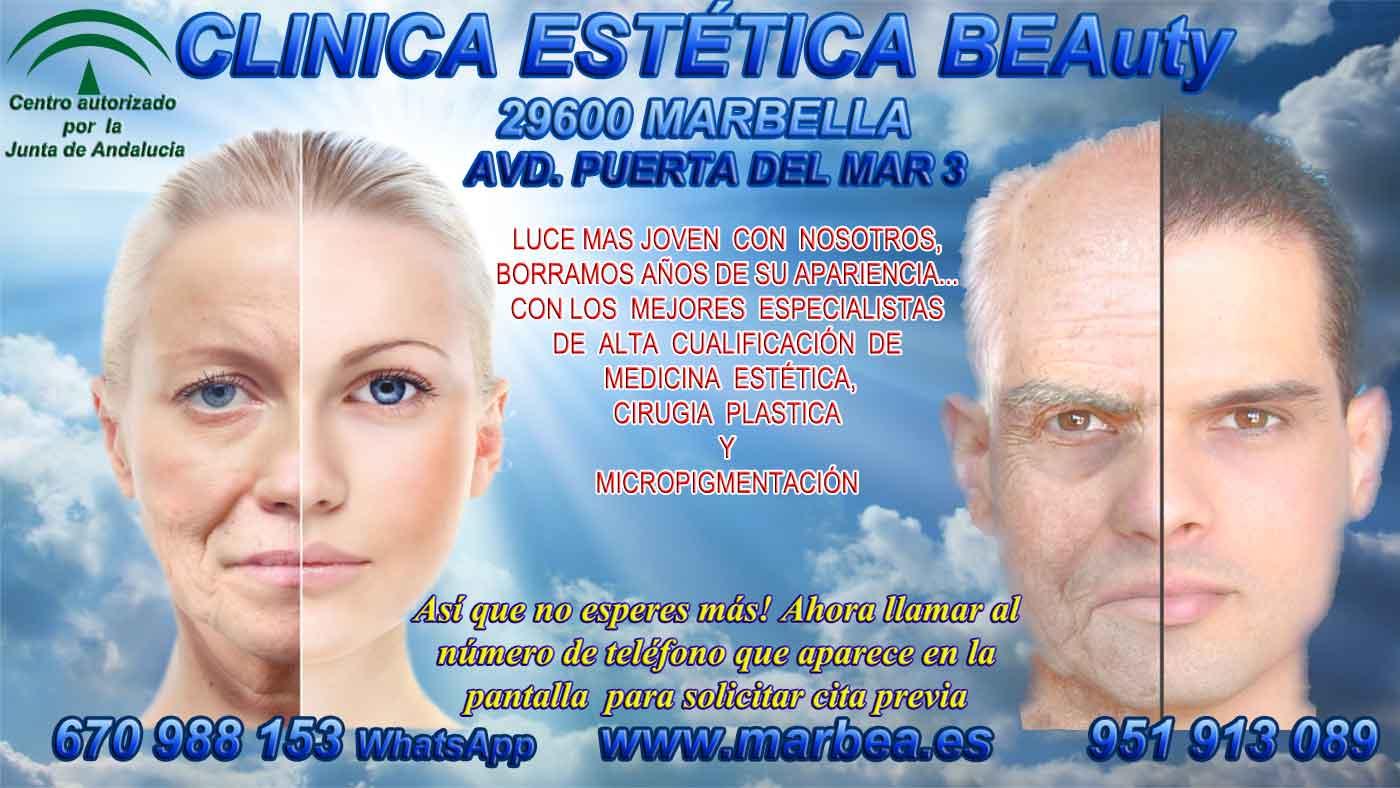 Eliminación ojeras Marbella CLINICA ESTÉTICA en MARBELLA ofrece tratamiento arrugas Marbella