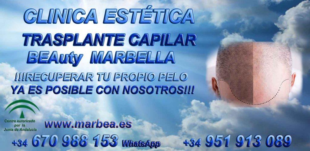 CLINICA TRASPLANTE CAPILAR y ESTÉTICA MARBELLA - uno de los centros más reconocidos, prestigiosos y especializados de España