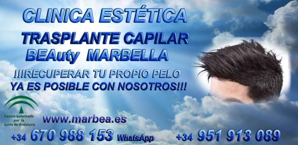 Trasplante capilar Marbella CLINICA ESTÉTICA MARBELLA Somos expertos en la METODO FUE MARBELLA, METODO TIRA MARBELLA, MICROINJERTO CAPILAR PRECIO MARBELLA, MICROINJERTO CAPILAR MARBELLA, TRASPLANTE marbella, IMPLANTE PELO MARBELLA, TECNICA FUE MARBELLA, TECNICA TIRA MARBELLA,