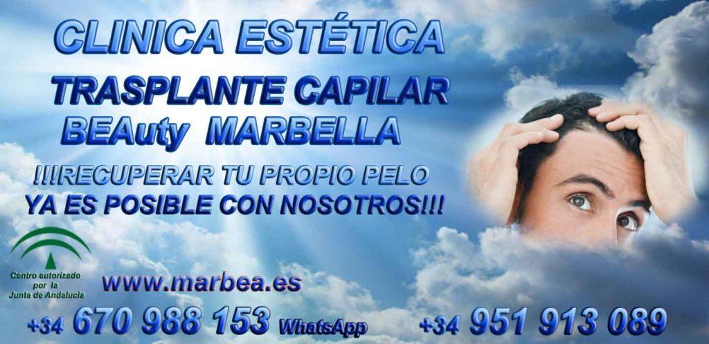 Trasplante capilar Marbella CLINICA TRASPLANTE CAPILAR y ESTÉTICA MARBELLA - uno de los centros más reconocidos, prestigiosos y especializados de España