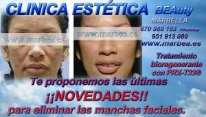 En la Clínica ESTÉTICA Marbella  contamos con los mejores médicos especialistas para recomendarle el mejor tratamiento de rejuvenecimiento facial en función de su tipo de piel y la tecnología de vanguardia para REJUVENECIMIENTO FACIALES SIN CIRUGIA EN MARBELLA CON TRATAMIENTO BIOREGENERANTE con PRX-T33 ®  TRATAMIENTO CICATRICES DE ACNÉ CLINICA ESTÉTICA MARBELLA ,  REDUCCIÓN ARRUGAS CLINICA ESTÉTICA MARBELLA ,  ELIMINAR O BORRAR BOLSAS DE OJOS  RELLENO ARRUGAS CLINICA ESTÉTICA MARBELLA ,MARCAS DE ACNÉ CLINICA ESTÉTICA MARBELLA ,  TRATAMIENTO PARA EL ACNÉ CLINICA ESTÉTICA MARBELLA ,  MANCHAS EN LA CARA HOMBRE CLINICA ESTÉTICA MARBELLA ,