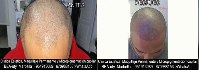 CICATRICES EN EL CUERO CABELLUDO TRATAMIENTO CLINICA ESTÉTICA micropigmentación capilar en Málaga o en Marbella y MAQUILLAJE PERMANENTE en MARBELLA