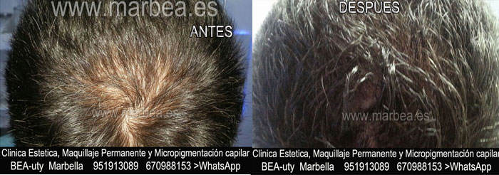 CICATRICES EN EL CUERO CABELLUDO TRATAMIENTO CLINICA ESTÉTICA dermopigmentacion capilar Málaga o Marbella y MAQUILLAJE PERMANENTE en MARBELLA