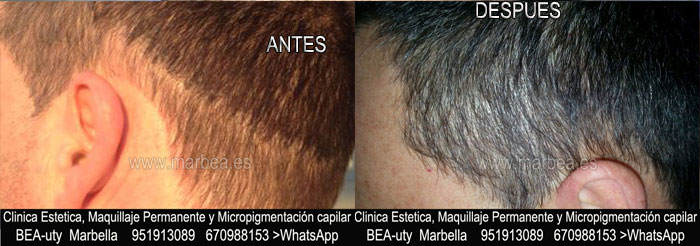 DISIMULAR CICATRIZ CABEZA CLINICA ESTÉTICA tatuaje capilar Marbella y maquillaje permanente en marbella ofrece: dermopigmentacion capilar , tatuaje capilar