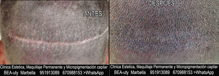 Camuflaje de la cicatriz del trasplante del pelo CLINICA ESTÉTICA micropigmentación capilar Marbella y maquillaje permanente en marbella ofrece: dermopigmentacion capilar , tatuaje capilar