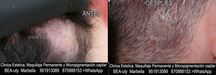 CAMUFLAJE DE LA CICATRIZ DEL TRASPLANTE DEL PELO CLINICA ESTÉTICA tatuaje capilar en Marbella y maquillaje permanente en marbella ofrece: dermopigmentacion capilar , tatuaje capilar