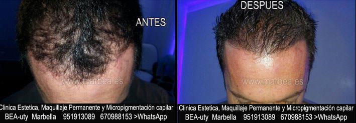 CICATRICES EN EL CUERO CABELLUDO TRATAMIENTO CLINICA ESTÉTICA tatuaje capilar en Málaga y en Marbella y MAQUILLAJE PERMANENTE en MARBELLA