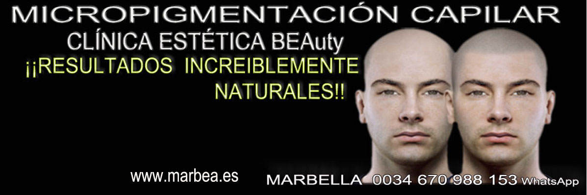 clinica estética, dermopigmentacion capilar Málaga or en Marbella y maquillaje permanente en marbella