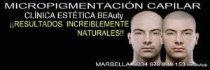 Micropigmentación Médica  clinica estética, micropigmentación capilar y maquillaje permanente en marbella ofrece: dermopigmentacion capilar , tatuaje capilar , tratamiento contra la alopecia , nuevo tratamiento alopecia , alopecia tratamiento