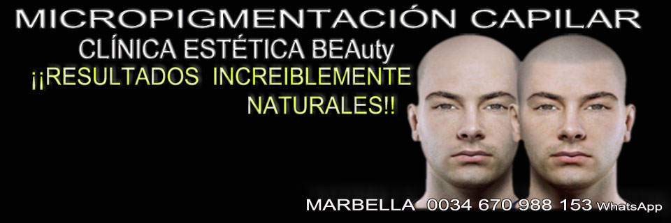 micropigmentaci capilar Marbella Clica Estica y tratamientos alopecia areata Marbella