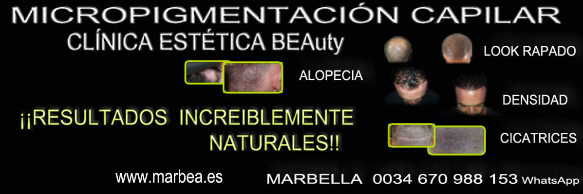 clinica estética, dermopigmentacion capilar en Marbella or Marbella y maquillaje permanente en marbella
