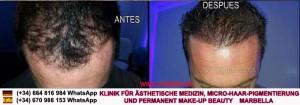HAAR PIGMENTIERUNG - Klinik für Ästhetische Medizin, Micro-Haar-Pigmentierung und Permanent Make-up BEAuty MARBELLA
