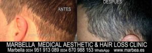 TATTOO HAIR SIMULATION Welcome to the PERMANENT MAKEUP MARBELLA CLINIC BEAuty , the biggest permanent makeup center in MARBELLA - Spain