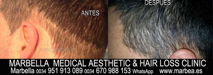 TATTOO HAIR welcome to the permanent makeup marbella clinic beauty , the biggest permanent makeup center in marbella - spain