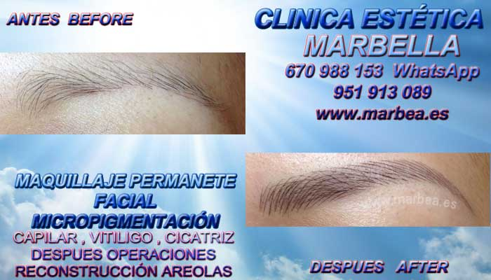 MICROBLADING MARBELLA CLINICA ESTÉTICA propone Dermopigmentacion labios Marbella