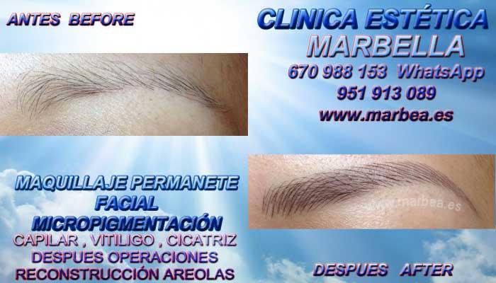 MICROBLADING MARBELLA CLINICA ESTÉTICA propone Maquillaje Permanente labios Marbella