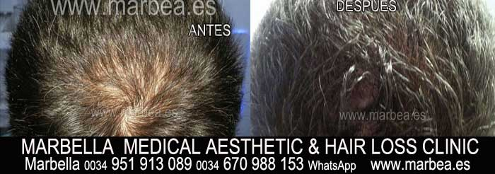 SCALP TATTOO SHADING TINTING Welcome to the PERMANENT MAKEUP MARBELLA CLINIC BEAuty , the biggest permanent makeup center in MARBELLA - Spain