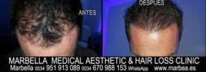 hair loss alopecia Treatment Welcome to the PERMANENT MAKEUP MARBELLA CLINIC BEAuty , the biggest permanent makeup center in MARBELLA - Spain
