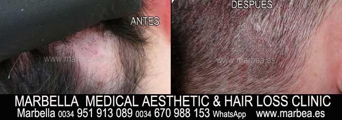 micropigmentación capilar Jérez Clínica Estética y tratamiento contra la alopecia Marbella: Te ofrecemos la mayor calidad de servicios