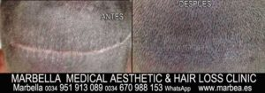 Micropigmentación Médica  Hair Transplant Scar Camouflage Welcome to the PERMANENT MAKEUP MARBELLA CLINIC BEAuty , the biggest permanent makeup center in MARBELLA - Spain