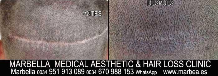 micropigmentación capilar La Línea Clínica Estética y tratamientos alopecia areata Marbella: Te proponemos la mayor calidad de servicios