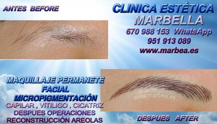 MICROBLADING MARBELLA CLINICA ESTÉTICA propone Maquillaje Permanente labios 3D en Marbella