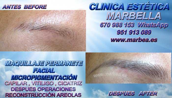 MICROBLADING MARBELLA CLINICA ESTÉTICA entrega Dermopigmentacion bocas Marbella