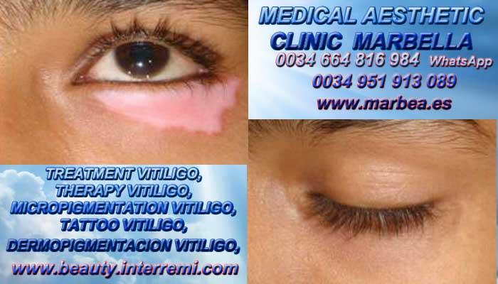 TREATMENT VITILIGO you are welcome!  the aesthetic medicine clinic in marbella