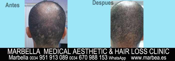 tratamiento caida del cabello mujeres Marbella Marbella Clínica Estética y tratamiento de la alopecia areata Marbella: Te proponemos la alta calidad de servicios