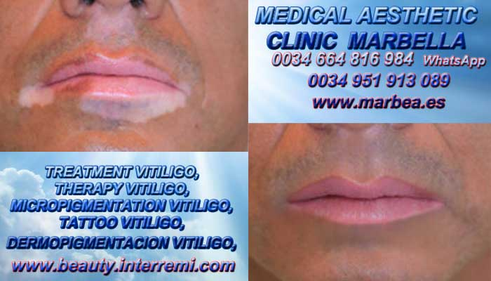MICROPIGMENTACIÓN VITILIGO clínica estética maquillaje permanete entrega Vitiligo Tratamiento