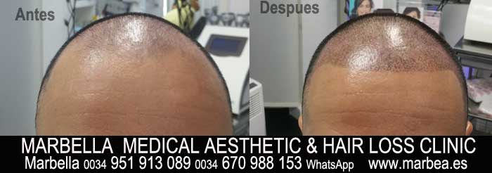 TATTOO HAIR SIMULATION MARBELLA Welcome to the PERMANENT MAKEUP MARBELLA CLINIC BEAuty , the biggest permanent makeup center in MARBELLA - Spain