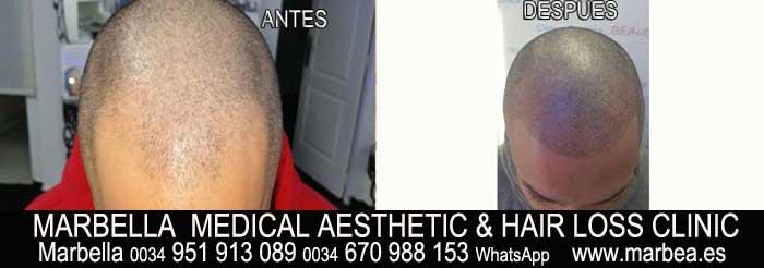 tratamiento caida del pelo mujer Marbella Marbella Clínica Estética y tratamientos alopecia areata Marbella: Te ofrecemos la alta calidad de servicios