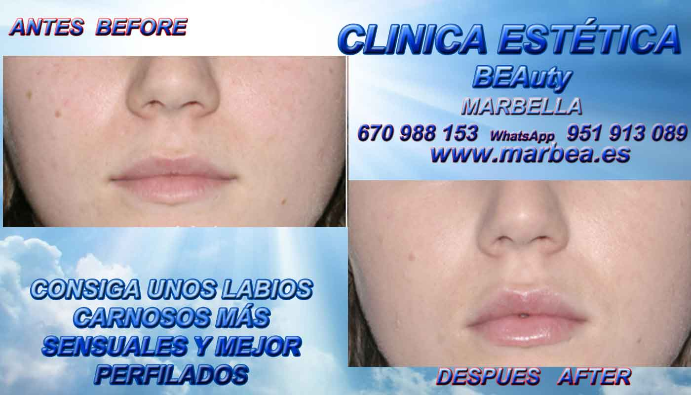 reducir para rejuvenecimiento facial aumento de labios Frontera
