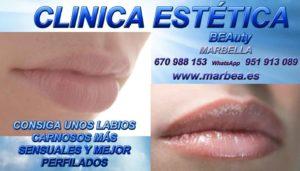 AUMENTO DE LABIOS MARBELLA mejor precio clinica estética marbella los mejores médicos especialistas en medicina estética