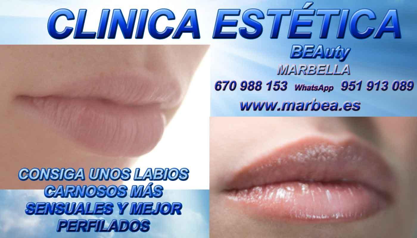 reducir para eliminar surcos nasogenianos aumento de labios Antequera
