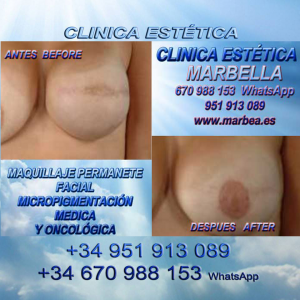 tratamiento cicatriz mama Reconstrucción de areola mamaria cicatrices cáncer de pecho, cicatrices despues de aumento de senos, cicatrices en aumento pecho.