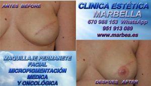 cicatriz despues de aumento de senos