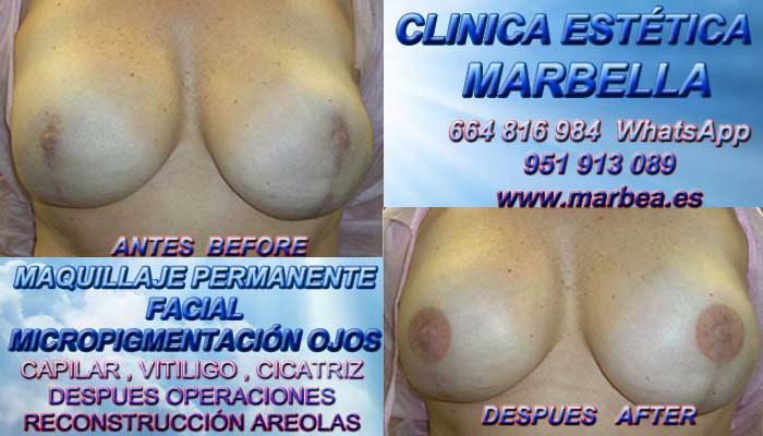 Micropigmentación de la areola Tratamiento cicatrices posteriormente de reduccion PECHOS Marbella or Estepona. Maquillaje Semipermanente Marbella y en Puerto Banus. Maquillaje Semipermanente Marbella y en Madrid