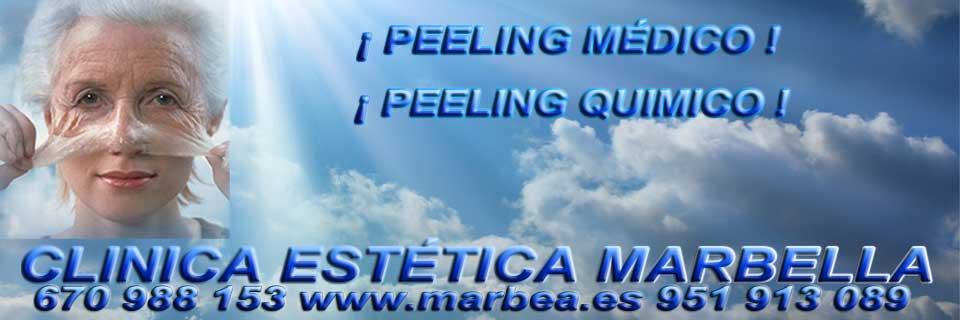 rejuvenecimiento facial Puerto Banus camuflaje para rejuvenecimiento facial hombre en Marbella o Puerto Banus