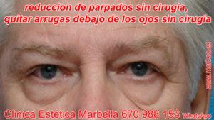 Blefaroplastia sin cirugía en Marbella - Parpados caidos sin cirugia Marbella, reduccion de parpados sin cirugia Marbella. Blefaroplastia en Marbella, subir parpados sin cirugia Marbella.