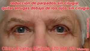 Parpados caidos sin cirugia Marbella, reduccion de parpados sin cirugia Marbella. Blefaroplastia en Marbella, subir parpados sin cirugia Marbella.