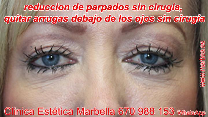Blefaroplastia sin cirugía en Eliminar las arrugas debajo de los ojos Marbella, rejuvenecer parpados sin cirugia Marbella.