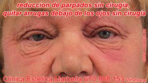 Blefaroplastia sin cirugía en Marbella Eliminar las arrugas debajo de los ojos Marbella, rejuvenecer parpados sin cirugia Marbella.
