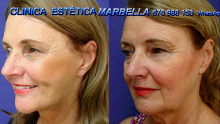 rejuvenecimiento facial Marbella