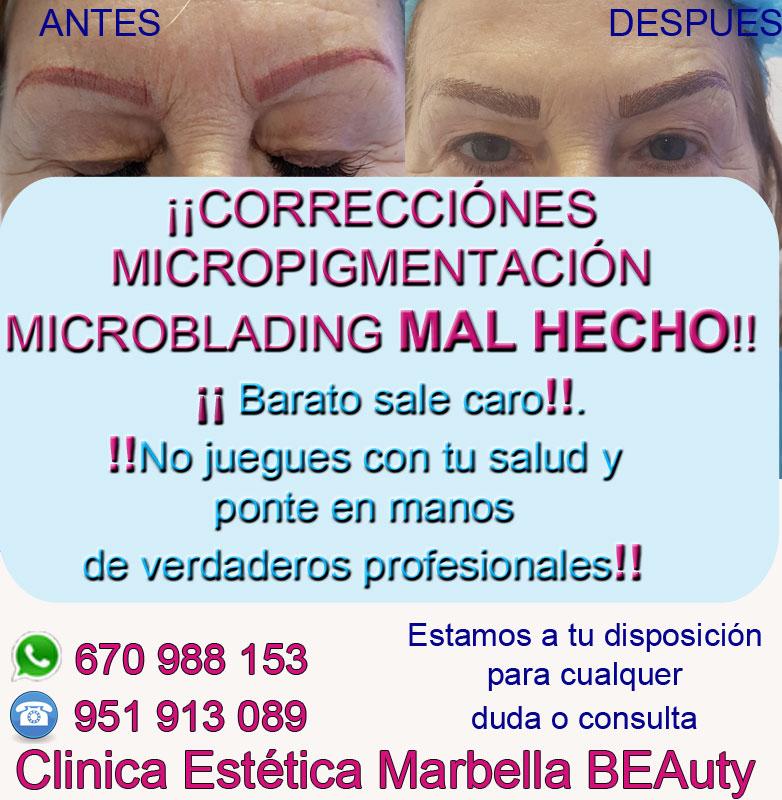corrección de micropigmentación en cejas Clinica Estética Marbella siempre con el mejor equipo de MICROPIGMENTACIÓN , microblading y maquillaje permanete Marbaella