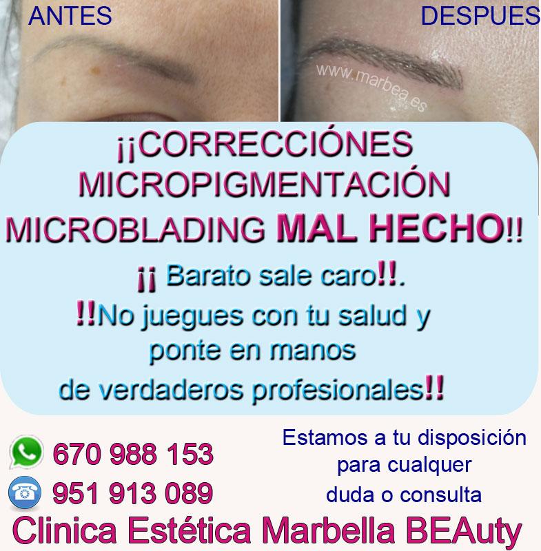 corrección de maquillaje permanente en cejas Clinica Estética Marbella siempre con el mejor equipo de MICROPIGMENTACIÓN , microblading y maquillaje permanete Marbaella