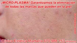 tratamientos para borrar cicatrices de acné en Marbella