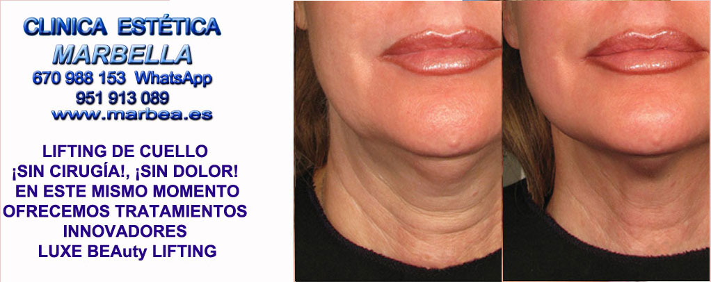 Lifting de cuello sin cirugía la Línea  Rejuvenecer cuello y papada sin cirugia. Lifting de cuello sin cirugía, Lifting de papada sin cirugia. en Marbella y la Línea