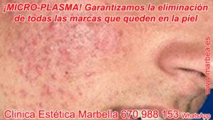 tratamientos para borrar manchas de acné en Marbella