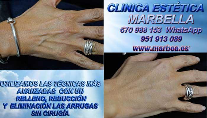 eliminacion manchas de las manos en MARBELLA En la CLINICA ESTÉTICA MARBELLA disponemos de los mejores profesionales en medicina estética que te podrán asesorar cual es la mejor opción para tratar tu problemas
